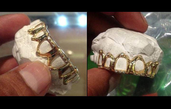 Bling é joias nos dentes arcada superior