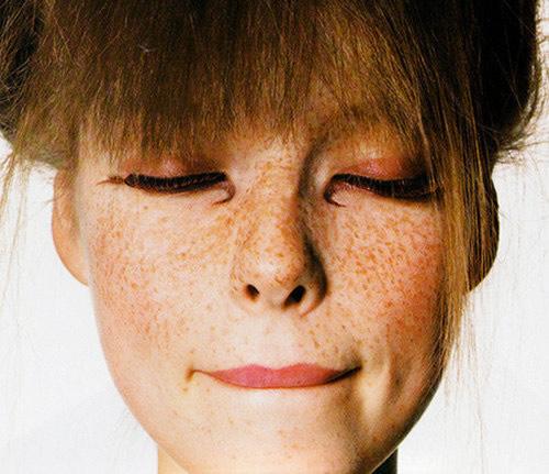 A doença na qual os lugares de pigmentary aparecem