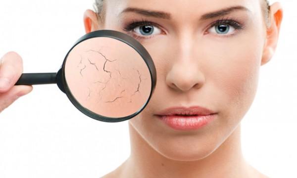 Como evitar ou tratar o ressecamento e vermelhidão no rosto