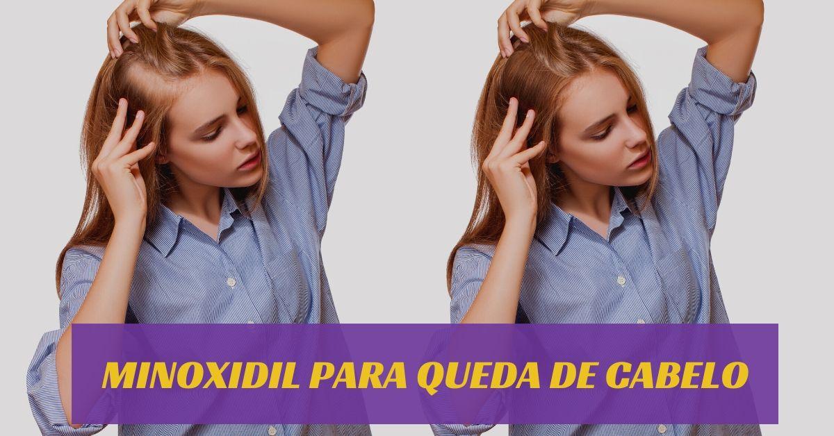 Minoxidil para queda de cabelo