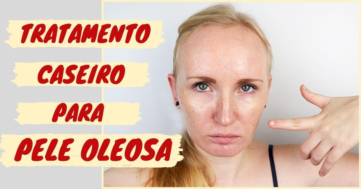 Tratamentos caseiros para pele oleosa
