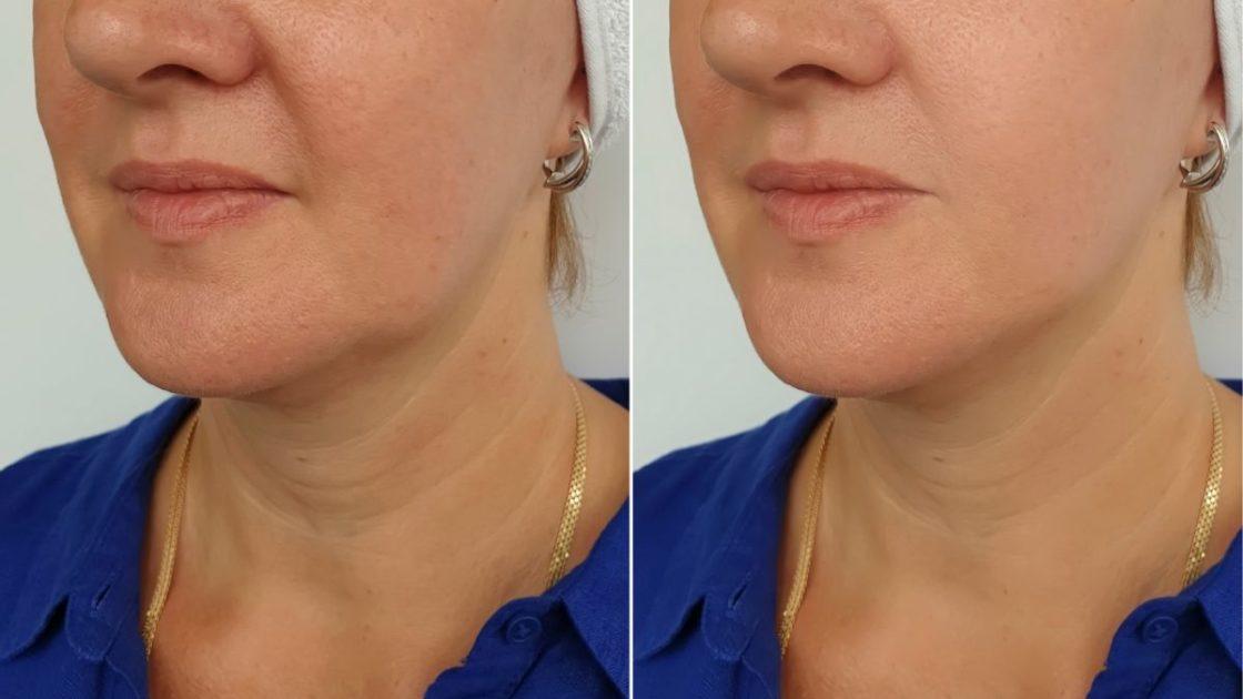 Tratamento caseiro para rejuvenescimento da pele