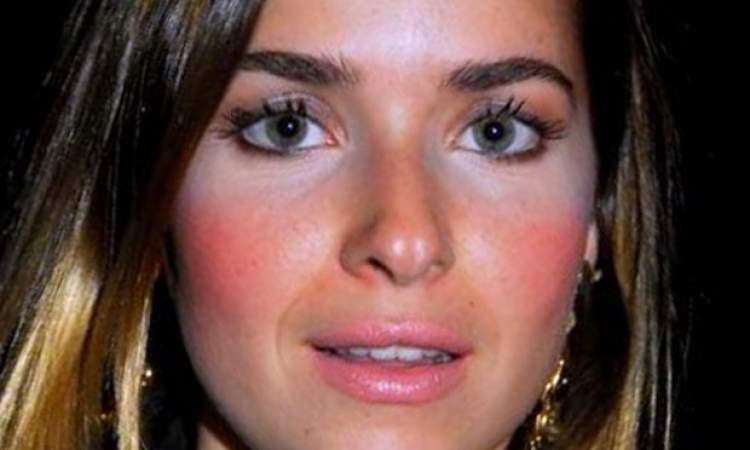 7 Erros mais comuns na hora de iluminar a pele e como evitá-los