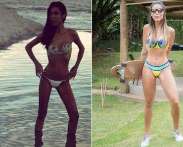 Gabi Miranda conta como superou a anorexia