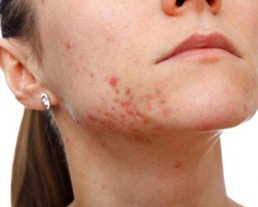 Saiba como os anticoncepcionais ajudam a tratar a acne