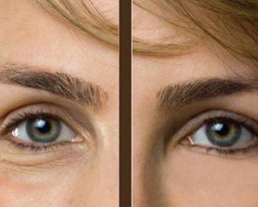 Antes e depois de eliminar olheiras e bolsas abaixo dos olhos