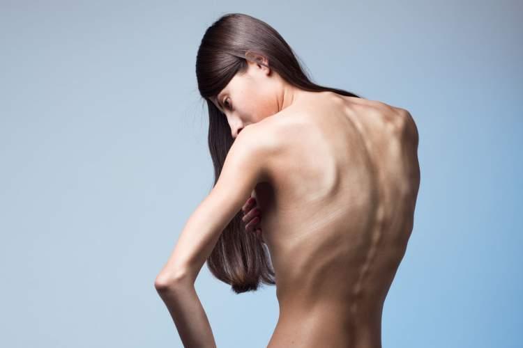 Emagrecimento vertiginoso é um dos sintomas comuns de câncer que são frequentemente ignorados