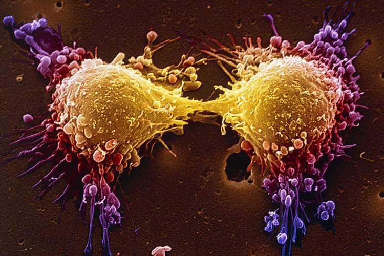 A deficiência de vitamina D deixa a pessoa com menos chance de combater o câncer