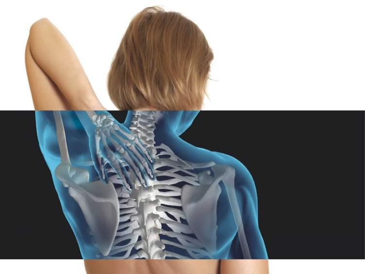 A deficiência de vitamina D pode causar Osteoporose
