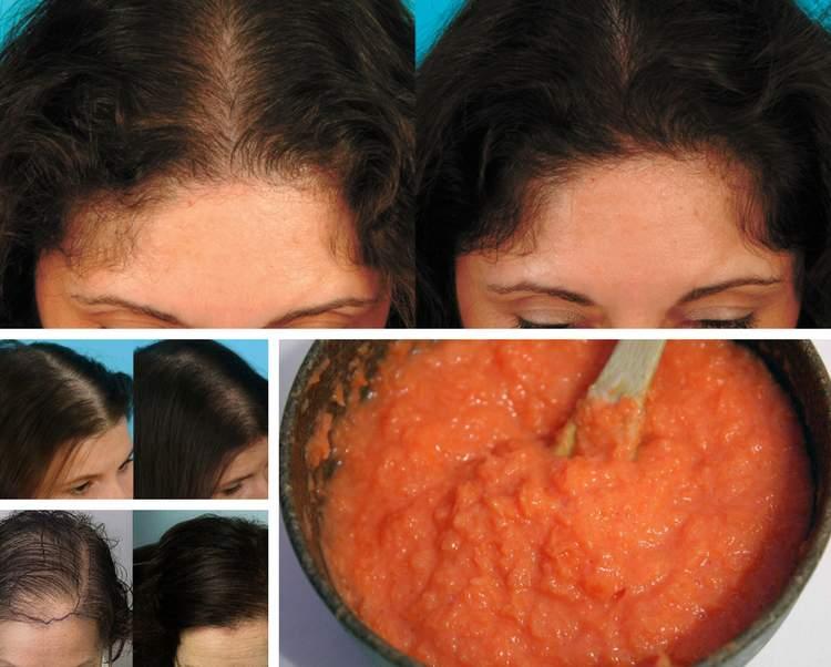 Faça seu cabelo parar de cair com essa receita caseira muito simples