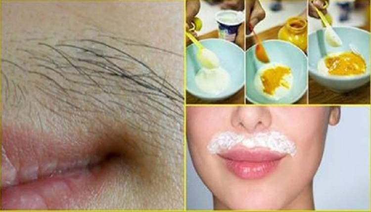 Receita com ovo, açúcar e amido de milho para eliminar os pelos do rosto
