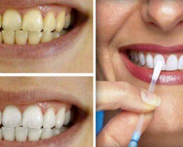 Tenha dentes brancos como nunca usando este método caseiro poderoso