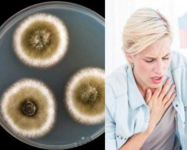 Sintomas da doença do mofo