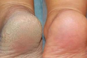 Tratamento caseiro com bicarbonato de sódio para deixar os pés macios e bonitos 1