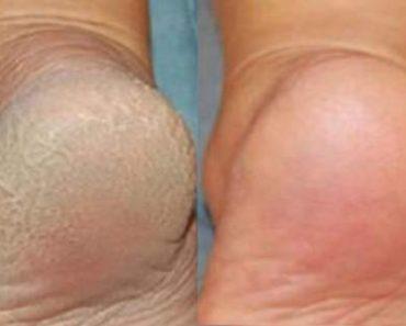 Antes e depois de tratar os pés com bicarbonato de sódio