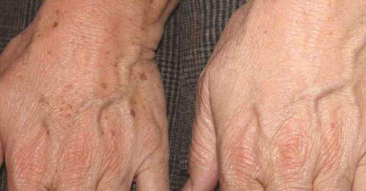A nata de pele combinada e de lugares de pigmentary