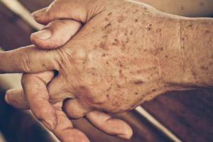 Tratamento caseiro para clarear e eliminar manchas das mãos