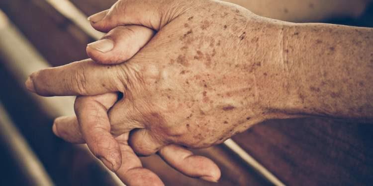 Resultado de imagem para manchas nas mãos