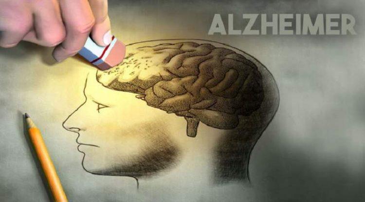 12 atitudes que você precisa adotar hoje para evitar a demência ou o mal de Alzheimer