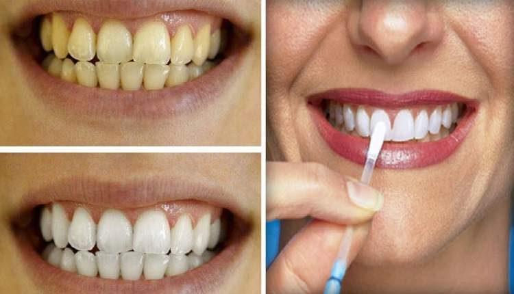 Técnica caseira para clarear os dentes