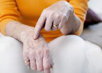 Tratamento caseiro para eliminar manchas nas mãos