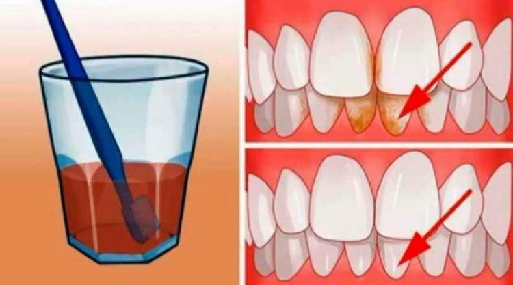 Tratamento caseiro para eliminar a placa bacteriana