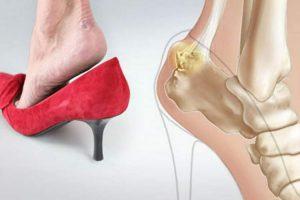 5 coisas assustadoras que acontecem com seu pé quando você usa salto alto 1