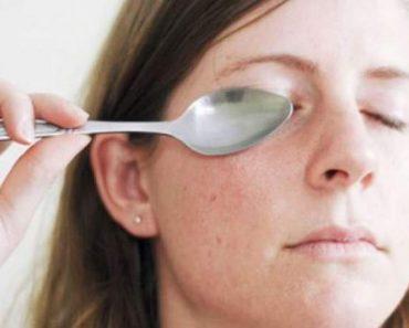 Colher gelada para eliminar olheiras e bolsas dos olhos
