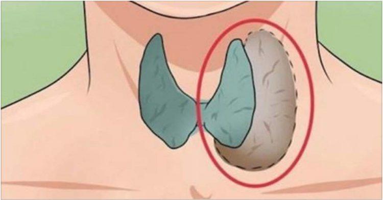sintomas comuns da doença na tireoide que você nem imagina