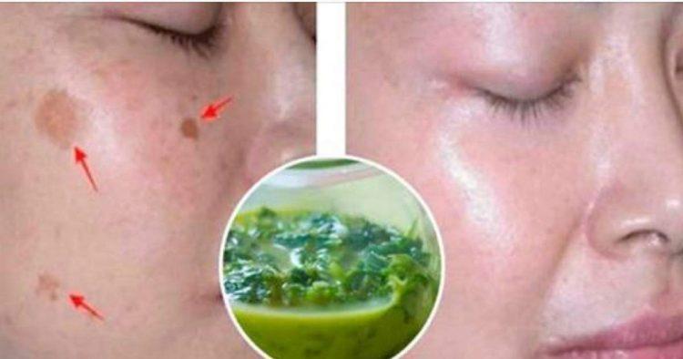 Aplique esta receita antes de dormir para acabar com as manchas na pele do rosto