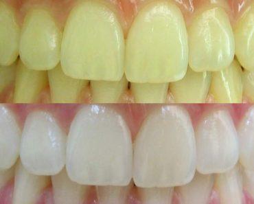 Confira três alternativas simples e baratas para clarear os dentes naturalmente em casa