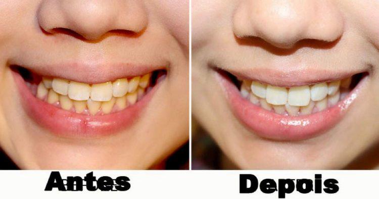 dicas caseiras para clarear os dentes naturalmente