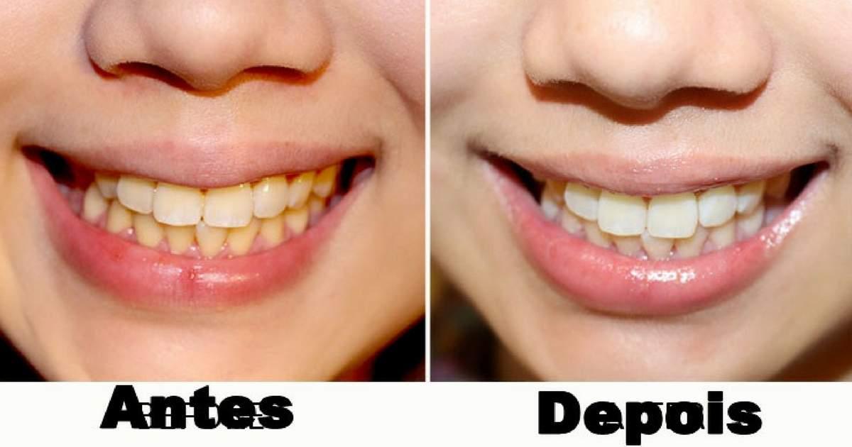 3 Dicas Caseiras Para Clarear Os Dentes Naturalmente Site De