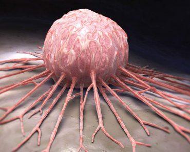 Esta é a causa principal do câncer: saiba como prevenir