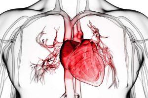 Sinais de infarto
