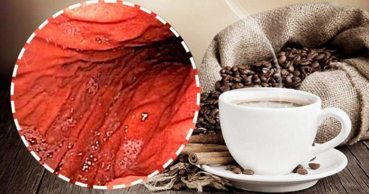 Malefícios de tomar café de estômago vazio