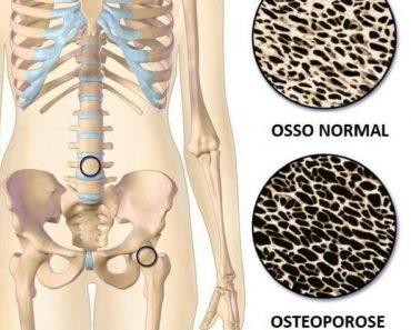 Diferença entre o osso normal e o com osteoporose