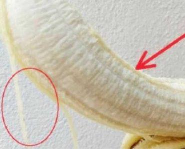 Sabe os fiozinhos brancos da banana? Eles podem ser muito úteis a você, saiba por quê