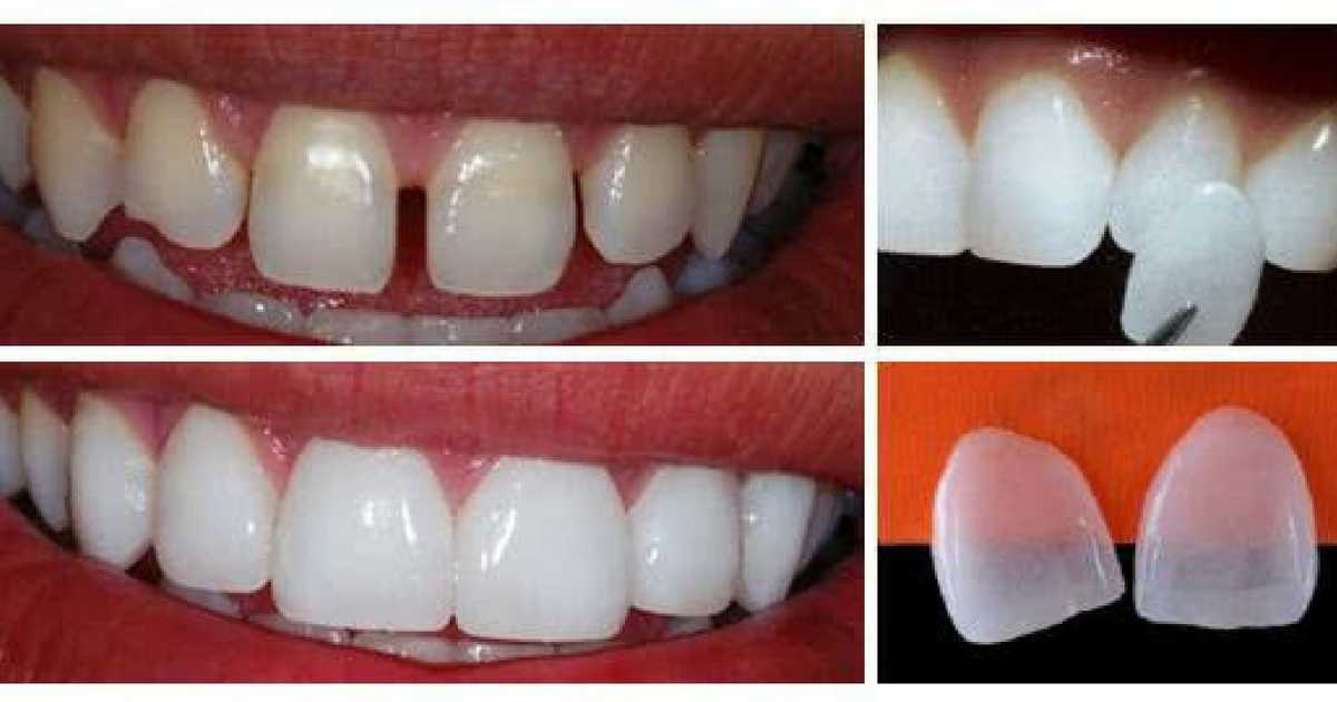 Quem tem bruxismo pode colocar lentes de contato nos dentes?