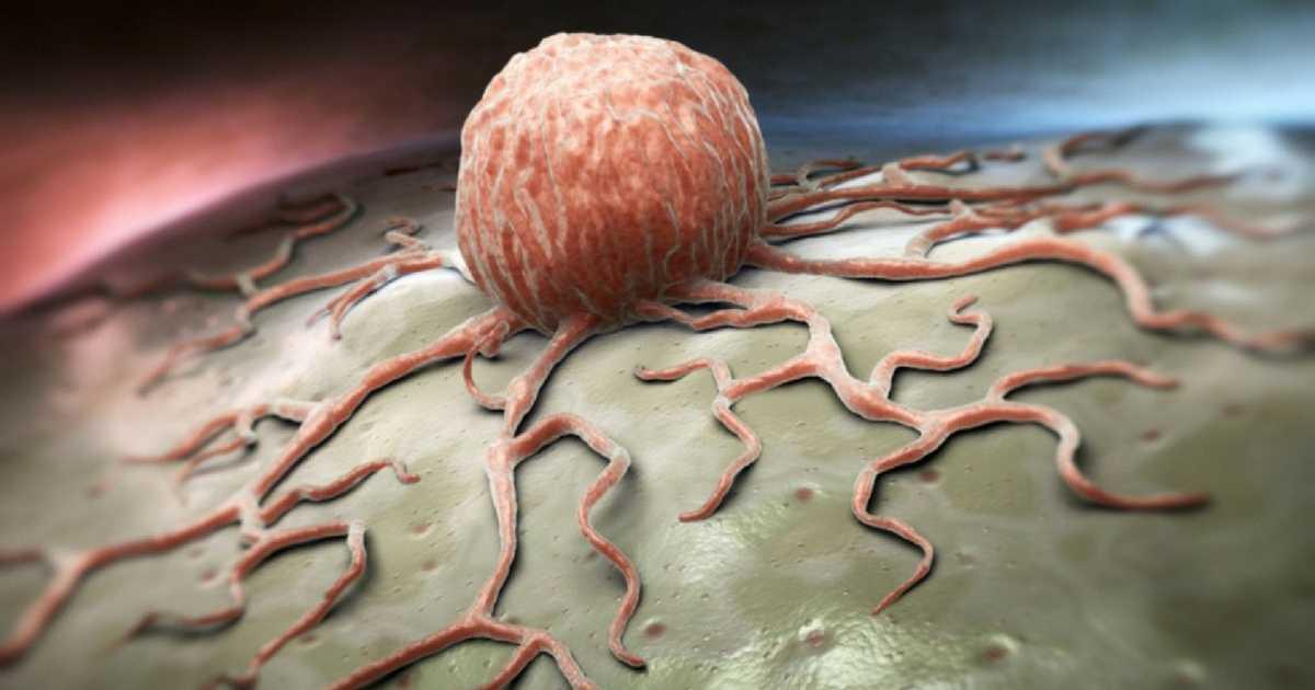Conheça os alimentos que causam o câncer