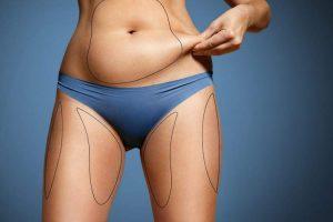 Perigos da lipoaspiração e maneiras de reduzir os riscos