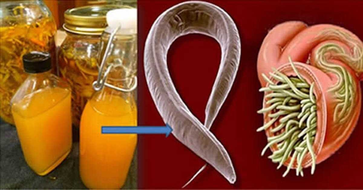 Melhor vermífugo caseiro para eliminar todos os parasitas do seu corpo