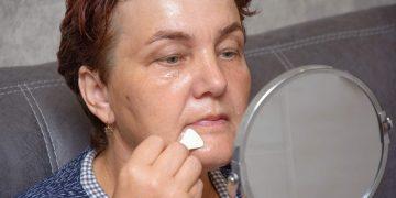Tratamento caseiro com óleo de coco para rugas e cicatrizes