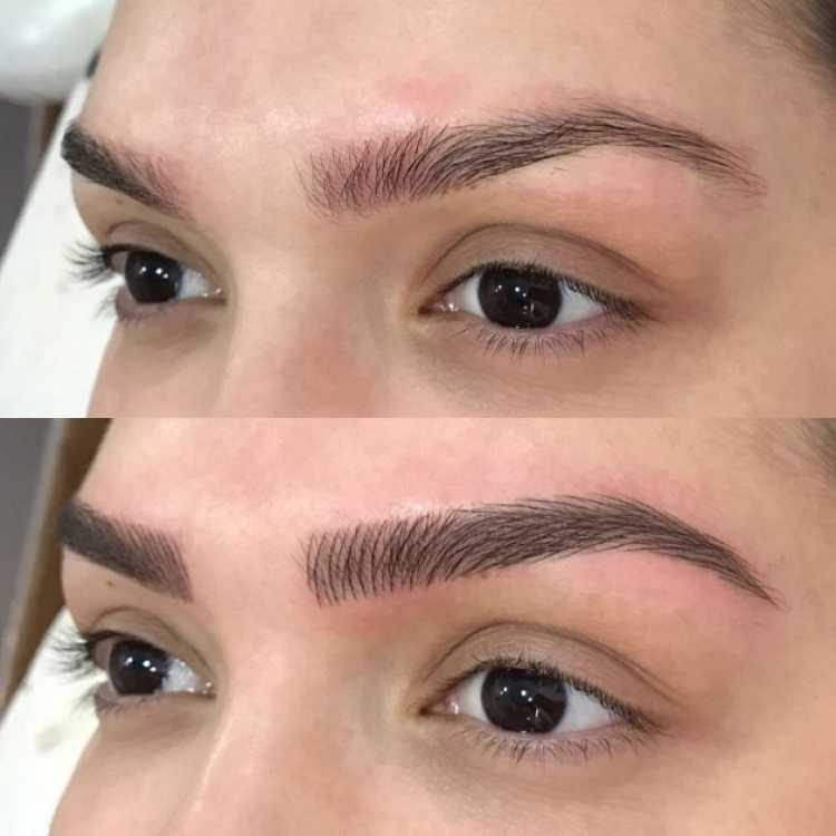 Comparação do antes e depois de fazer a Micropigmentação de sobrancelha