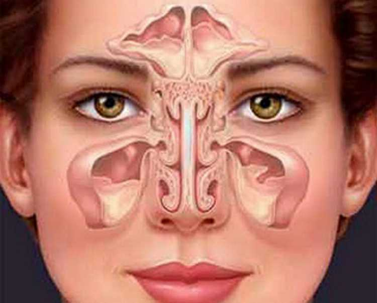 sintomas de sinusite