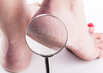 Benefícios do vinagre para pés ressecados