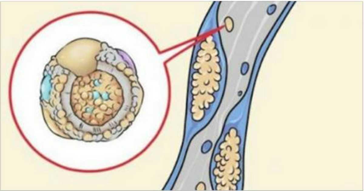 10 alimentos para limpar as artérias e reduzir os riscos de um infarto, derrame ou trombose