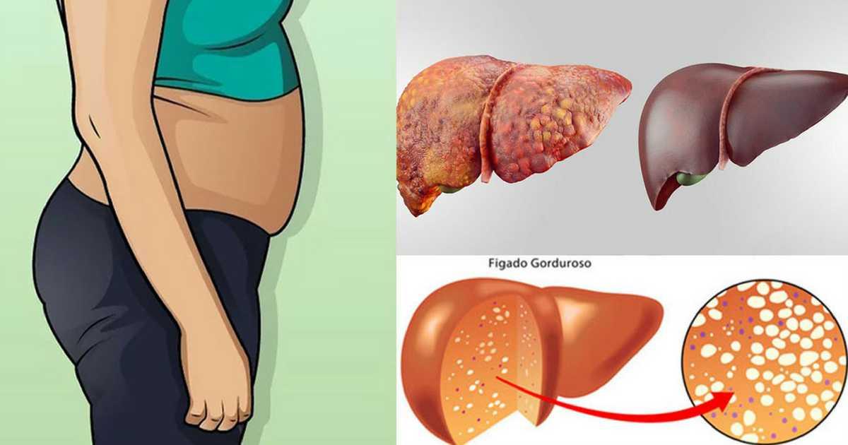 Conheça os 7 melhores alimentos para quem tem gordura no fígado.