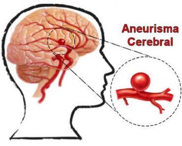 O aneurisma cerebral afeta as artérias do cérebro que, em geral, precisam ser bastante resistentes para suportar o fluxo sanguíneo que passa por suas paredes constantemente.