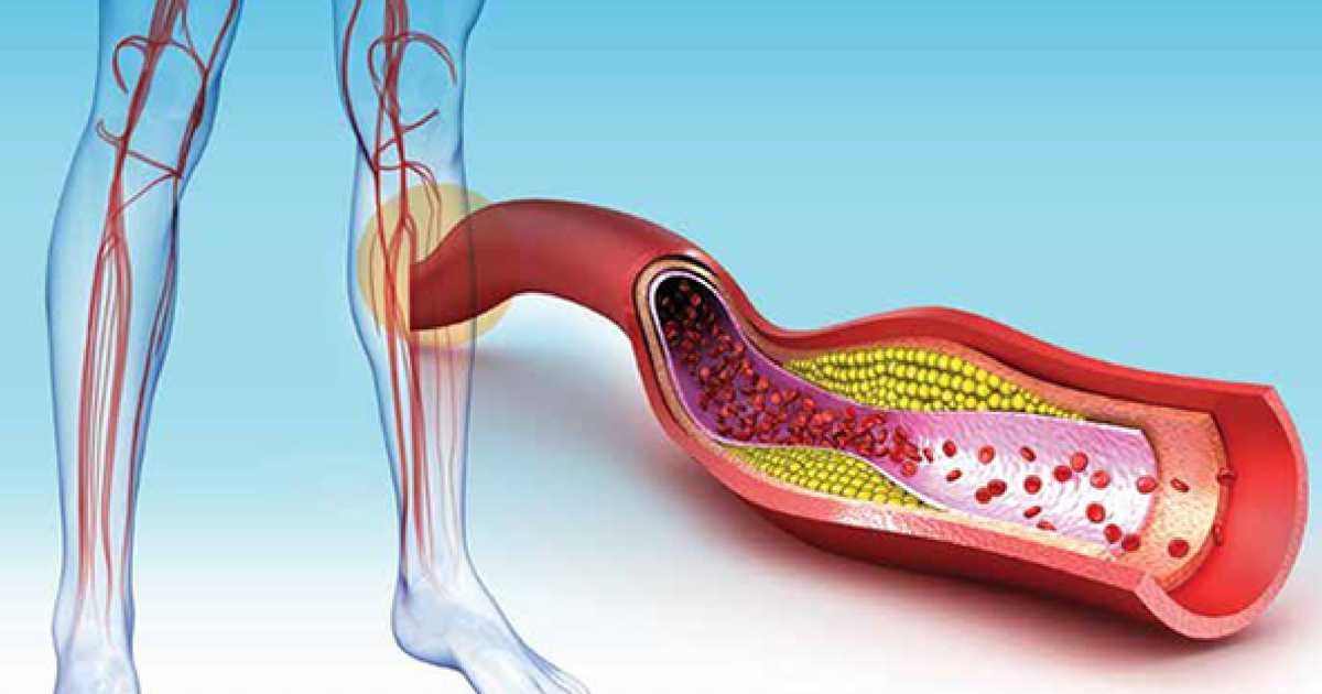 Sinais de formação de um coágulo sanguíneo
